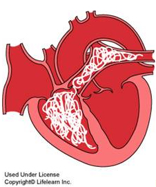 Illustration of heartworm in heart